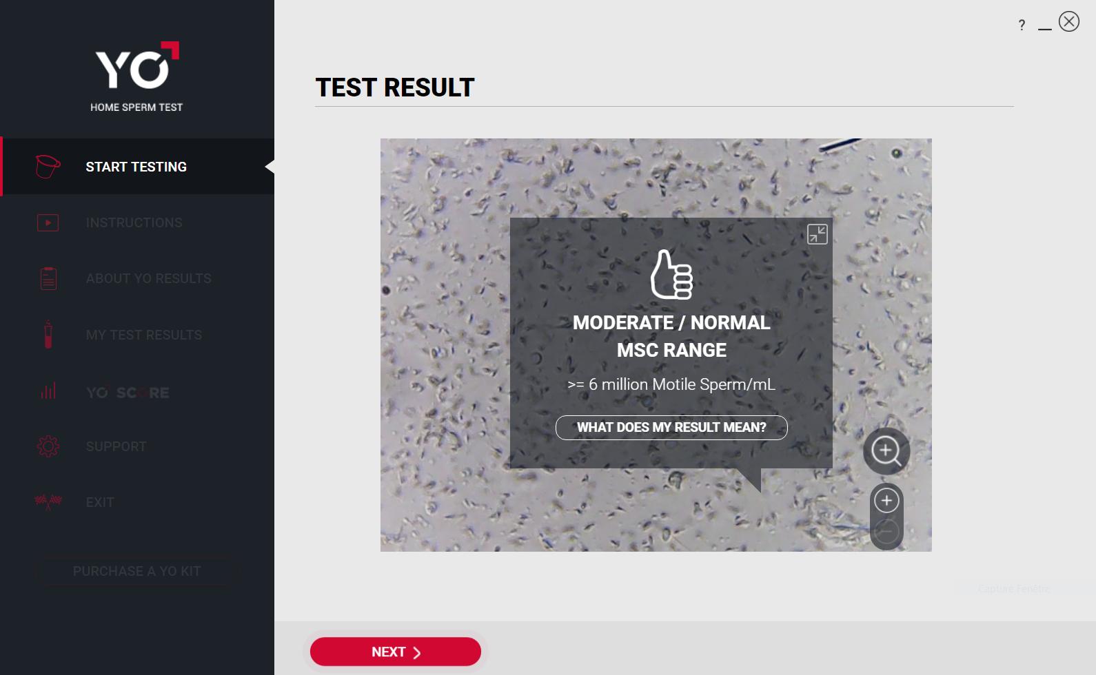 Yo Home Sperm Test Résultat mobilité spermatozoïde